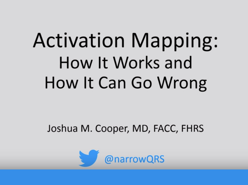 Activation Mapping: Basic Concepts, Pitfalls, and Windowing