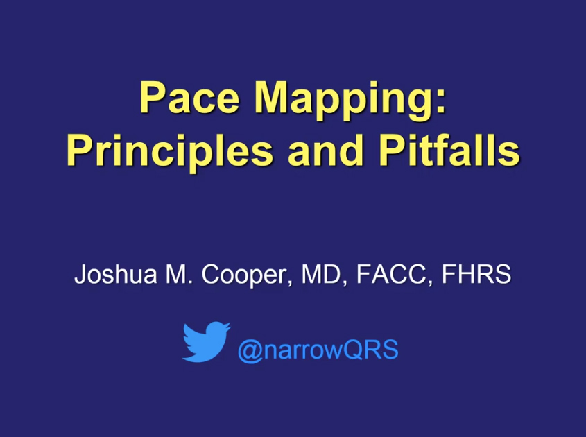Pace Mapping: Principles and Pitfalls