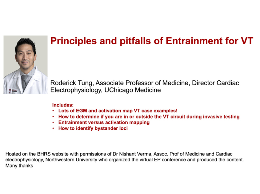 Principles and Pitfalls of Entrainment for VT