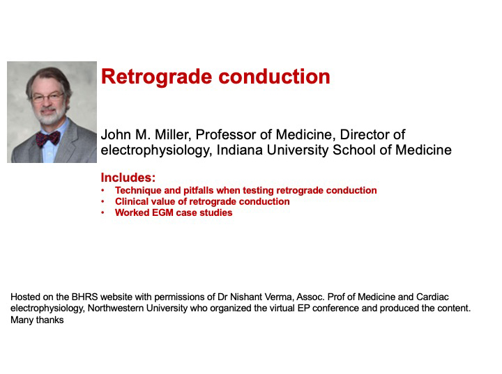 Retrograde Conduction