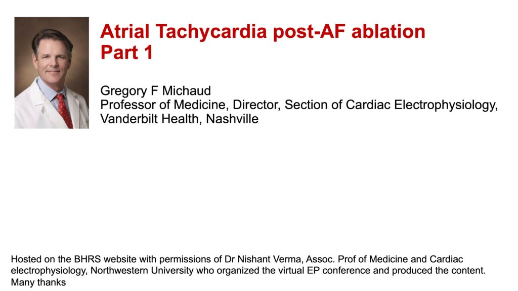 Atrial Tachycardia post-AF ablation: Part 1