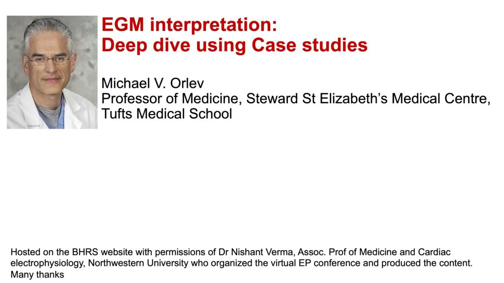 EGM interpretation: Deep dive using Case studies
