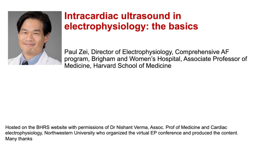 Intracardiac ultrasound in electrophysiology: the basics