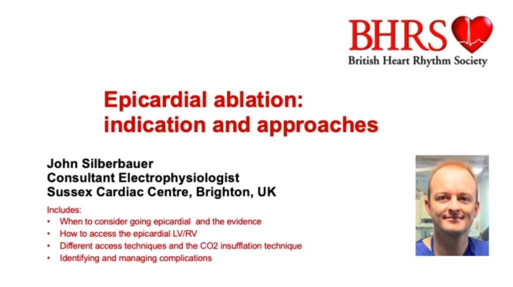 Eipicardial Ablation: Indication & Approaches