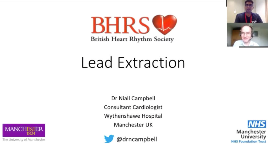 Lead Extraction